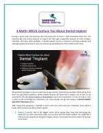Distinguish Myths and Facts about Dental Implant
