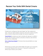Recover Your Smile With Dental Crowns