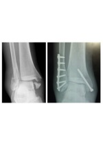 Fracture treatment in Coimbatore - One Care Medical Center