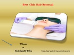 Best Chin Hair Removal